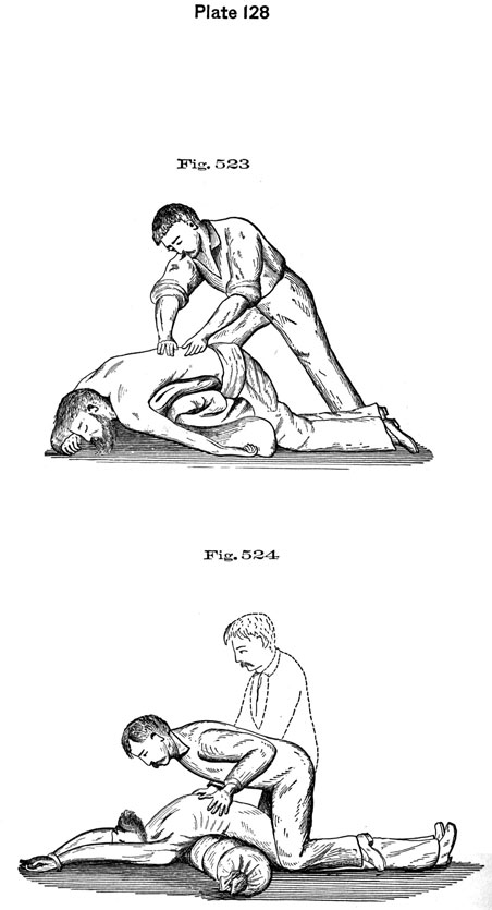 Plate 128, Fig 523-524. Performing chest compressions.